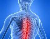 osteochondrozė vertinimas
