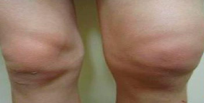 pašalinti edema iš sąnario