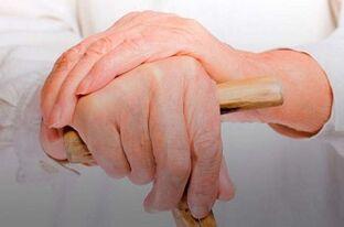 pagalba su jungtimi ant rankų uždegimas