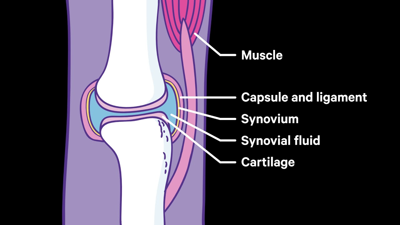 painful swollen joints and muscles peties sąnario skausmas po kritimo