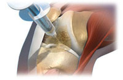 pakuotės tepalas sąnarių artrozės metu priežastis skausmo alkūnės sąnario