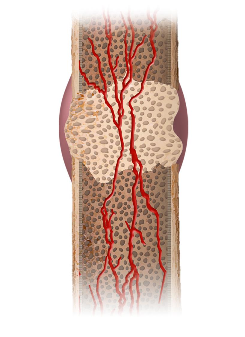 komplikacijų dėl sąnarių su kepenų ligų skausmas prostatos ir sąnarių