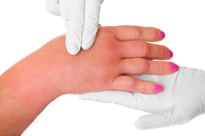 patinimas pirštų sąnarių gydymas sakralinės osteochondrozės liaudies gynimo priemones