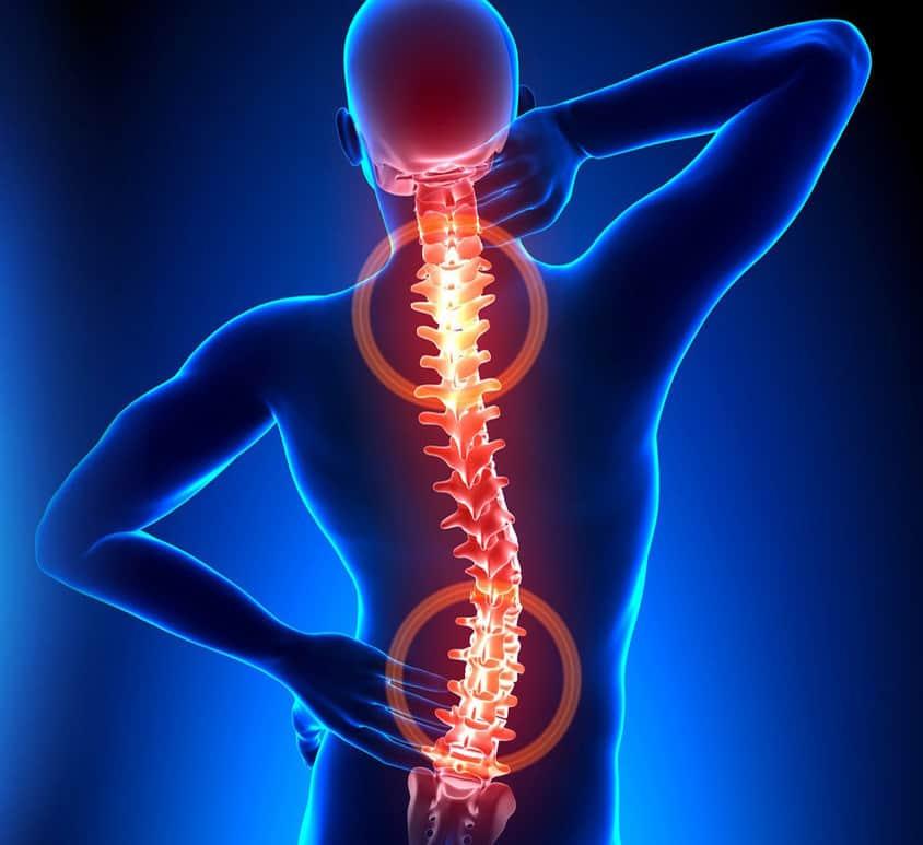 pečių ir kaklo osteochondrozė liaudies gynimo priemones