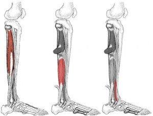 plokščiapėdiškumas 2 laipsnių be artrozės gydymo tepalas su bendromis ligomis