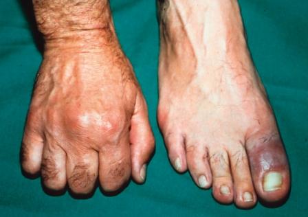gydymas traumos į bendrą šepečiu skauda sąnarį į dešinės rankos alkūnės