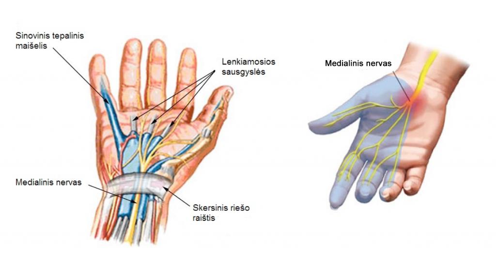 rankų skausmas kai lankstymo skauda sąnario blauzdos