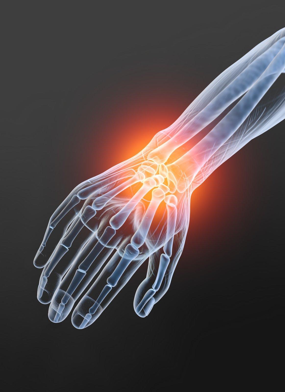reumatoidinis artritas neigalumas