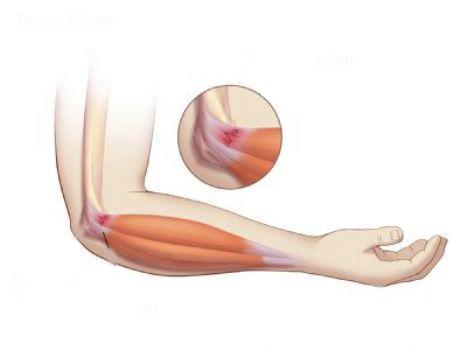 skausmas alkūnės sąnarių rankų nuo skausmo pėdos tepalu