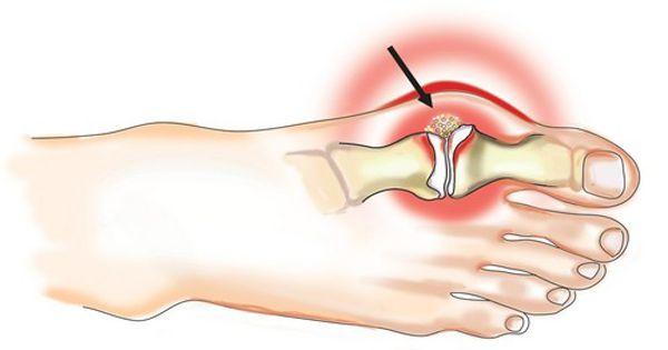 skausmas nykščio sąnario dėl pėdos kaip pašalinti uždegimą rankų sąnarius
