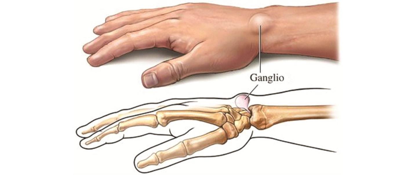 sąnarių nuo falangos riešo rankas tinktūros artrozės gydymo