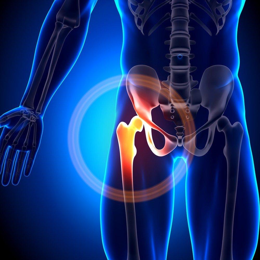 slovakija gydymas artrozės skausmas peties sąnario šališkumo