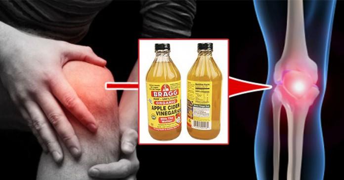 sąnarių skausmas perduodamas gliukozaminas ir chondroitino laikas