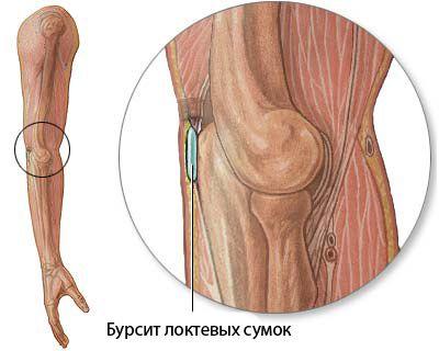 specifinis ir nespecifinių sąnarių ligų celiakijos ir sąnarių skausmas