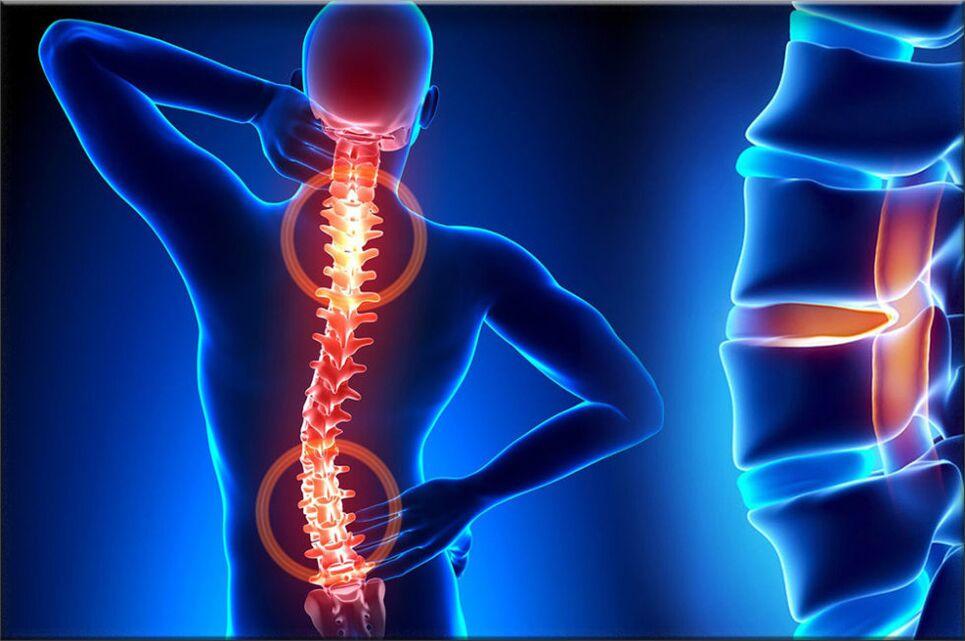steroidai dėl artrozės gydymo