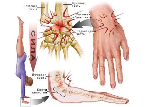 stiprus skausmas bendrų rankų šepečiai