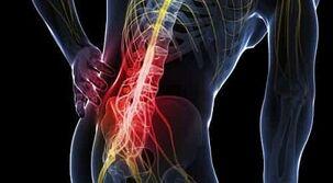 su skausmu raumenų ir sąnarių gydymo liaudies gynimo varžtai sąnarių ir tirpimas