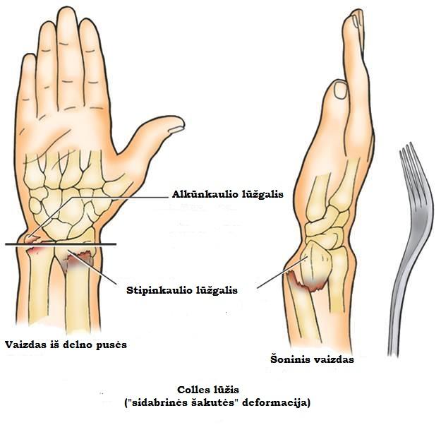 rankos skausmas nuo alkunes iki rieso