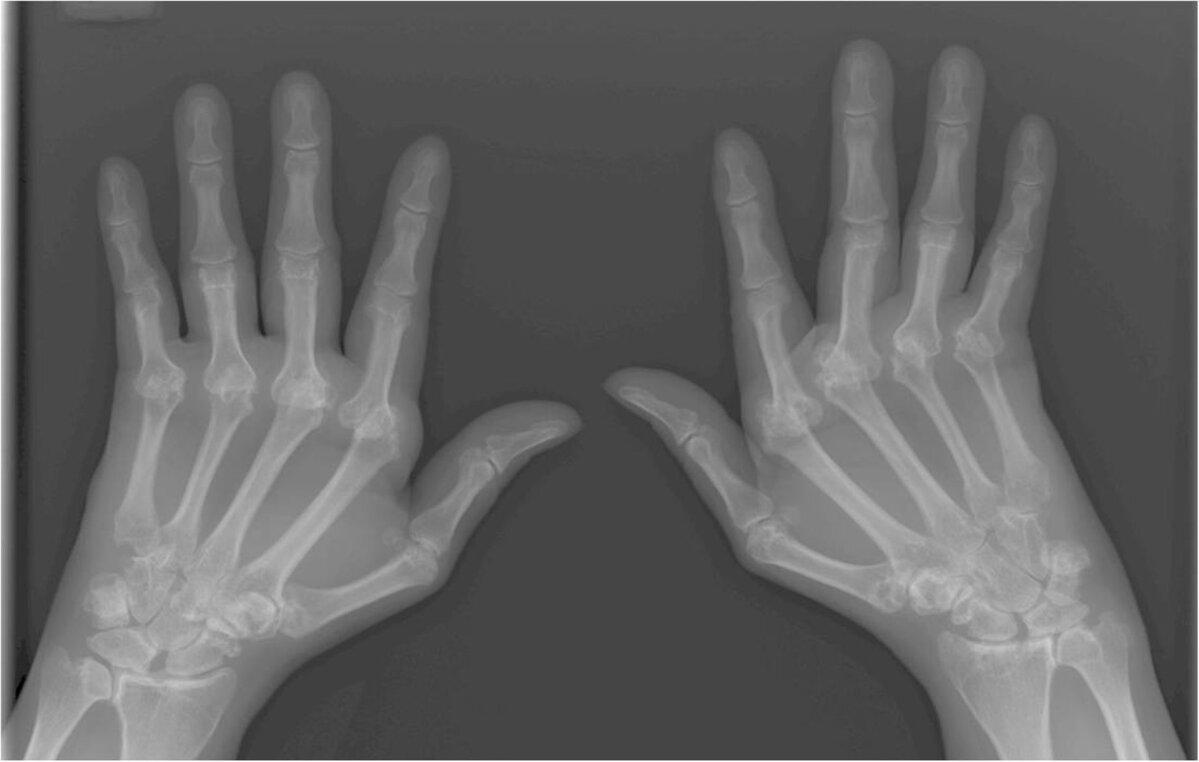 sustaines artrosis 2 laipsnių natalija žemės gydymas sąnarių