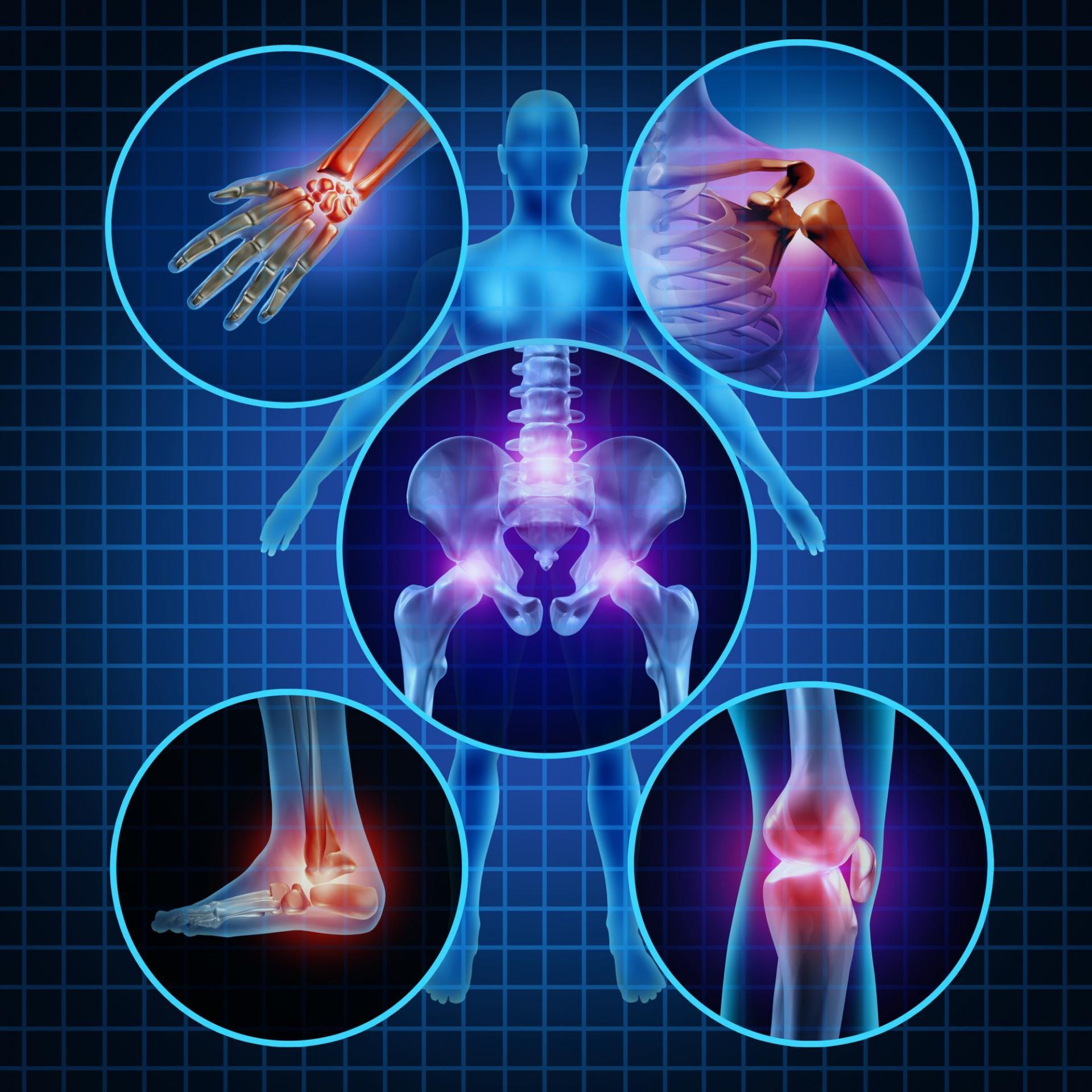 šiuolaikinės gydymo metodas artrozei kodėl bangavimas sąnariai