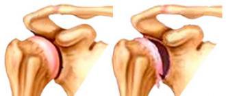 vaistai nuo kojos skausmo rankų apyrankės esantys artrito