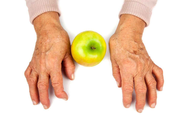 tepalas ištekėti už sąnarių ką daryti kai jūsų sąnariai skauda ranką