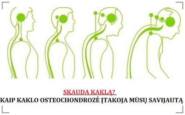 tepalas osteochondrozės kaklo kaip atpažinti kad peties sąnario artrozės