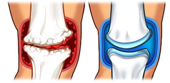 tepalas skirtos regeneruoti sąnarių tablečių į arthris artrito gydymui