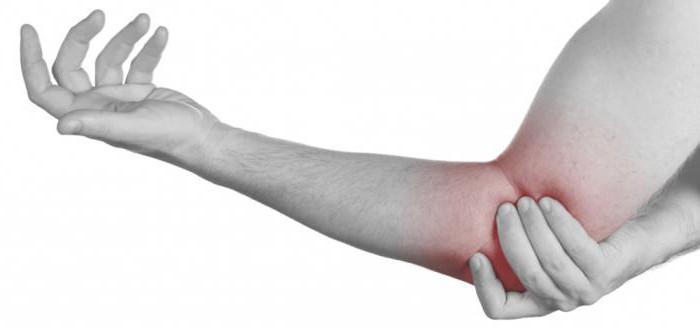 tepalas su osteoartrozės alkūnės sąnario