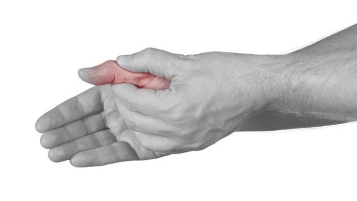 terapinės žolės su sąnarių skausmas ką daryti jei jūsų sąnariai yra skausminga nuo oro