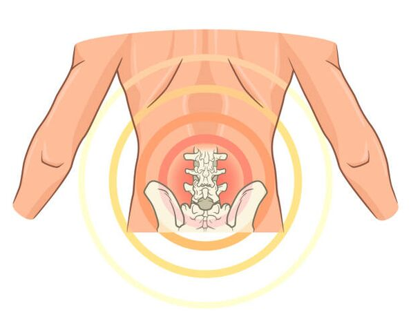 tinktūros artrozės gydymo