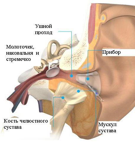 gelis kėlimo uždegimas ir sąnarių skausmas ūmus artrozė sąnarių