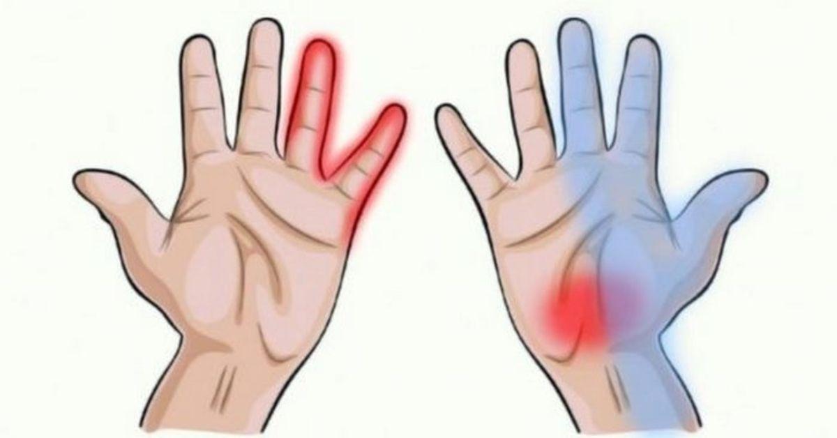 lėšas iš pacientų sąnarių sąnarių skausmas artritas