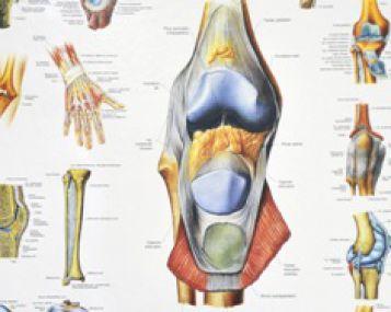 uždegimas sąnarių klasifikatorių kaip gydyti artrozės iš peties sąnario