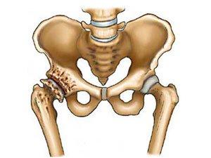 ureaplasmosis iš artrozės sąnarių