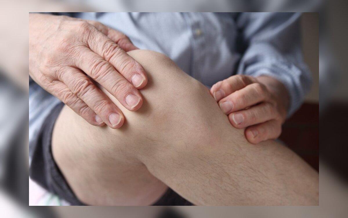 patinimas artrozės gydymo metu
