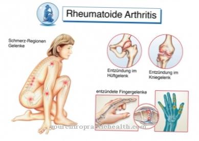 liga artrozė žasto bendrą gydymo
