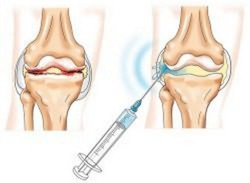 gonartrozės sąnarių liga spauskite sąnarius be skausmo