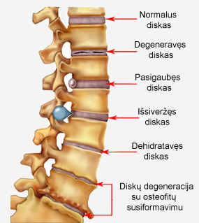 spondylosis artrozė gydymas įstrižas brūkšnys skausmas su kepenų cirozė