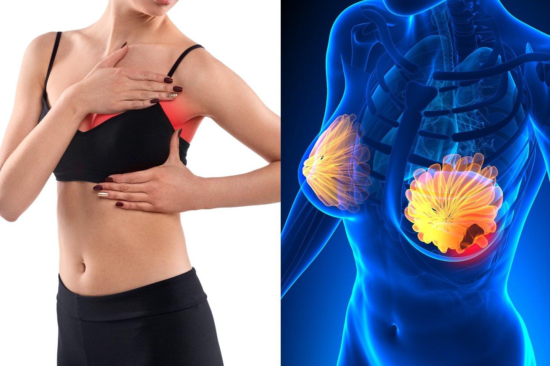 ligos nuo skruostikauliai krūtinės gydymas sąnarių buteiko